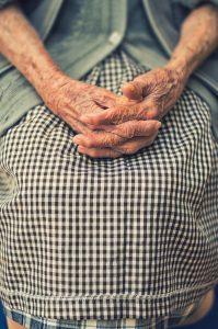 arthritis hands, swollen hands